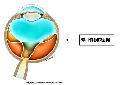 牽引性網膜剥離(糖尿病網膜症)