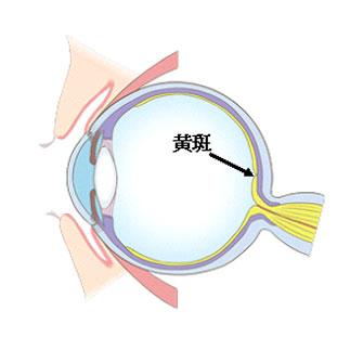 黄斑前膜(上膜)