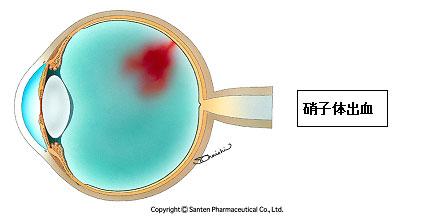 硝子体出血1(糖尿病網膜症)