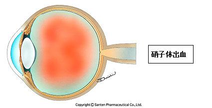 硝子体出血2(糖尿病網膜症)